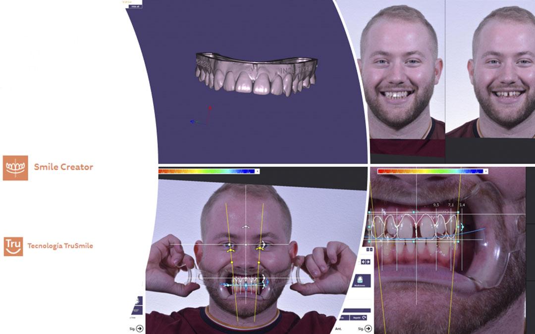 07- Mock up del paciente utilizando Smile Creator y TruSmile